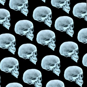 Skull X-Ray Repeat